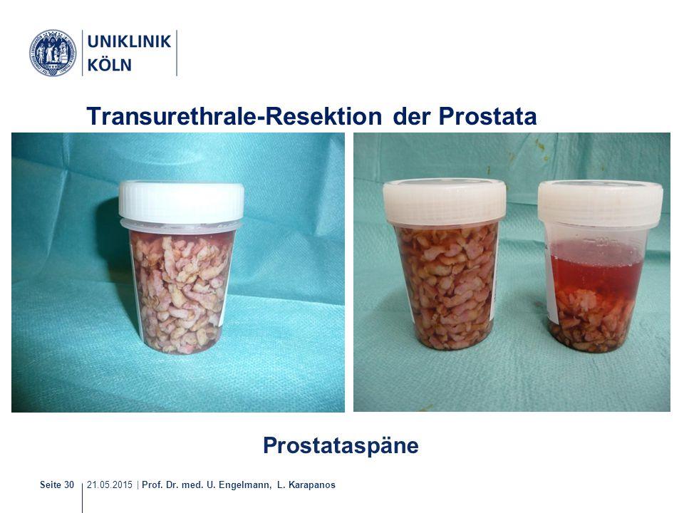 Transurethrale-Resektion der Prostata (TUR-P)