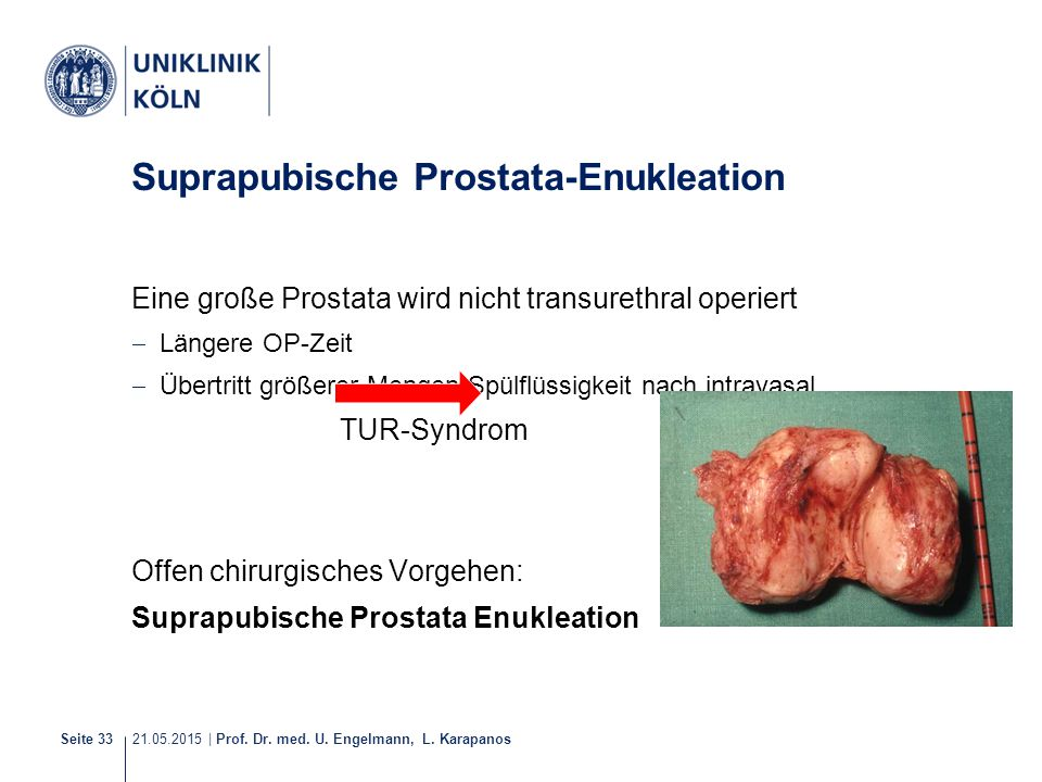 Suprapubische Prostata-Enukleation