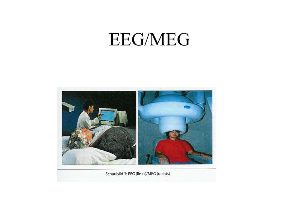 EEG/MEG