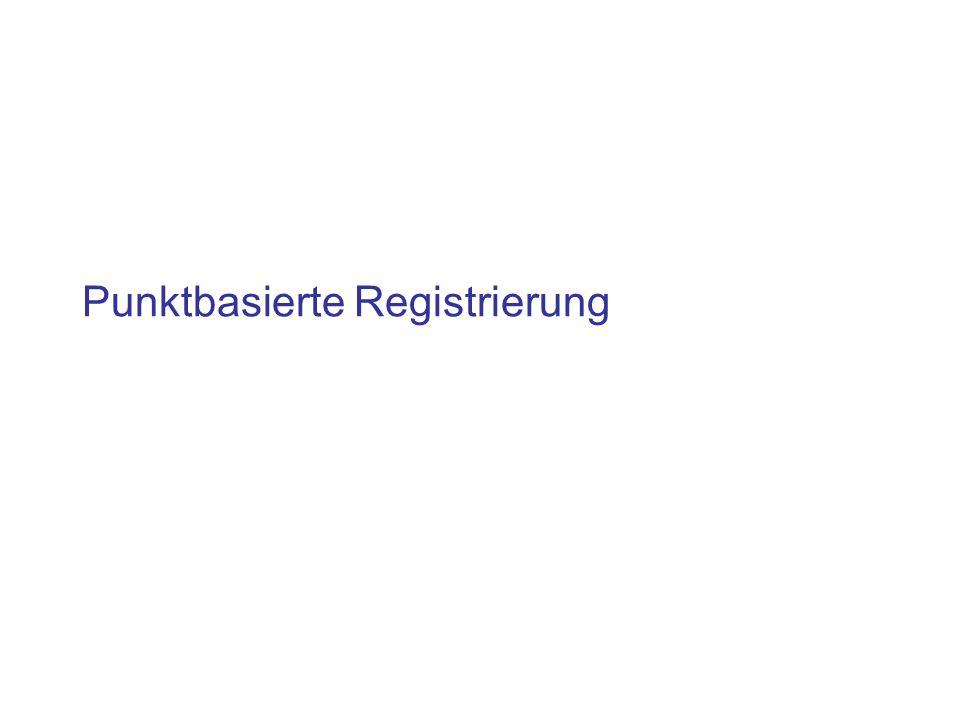 Punktbasierte Registrierung
