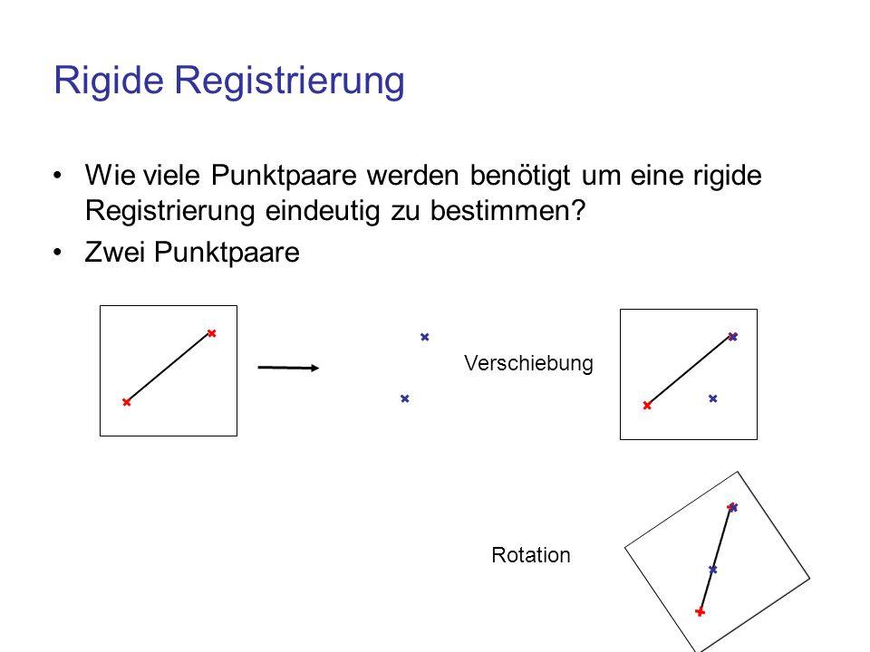 Rigide Registrierung Wie viele Punktpaare werden benötigt um eine rigide Registrierung eindeutig zu bestimmen