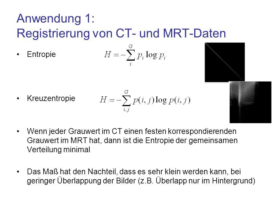 Anwendung 1: Registrierung von CT- und MRT-Daten