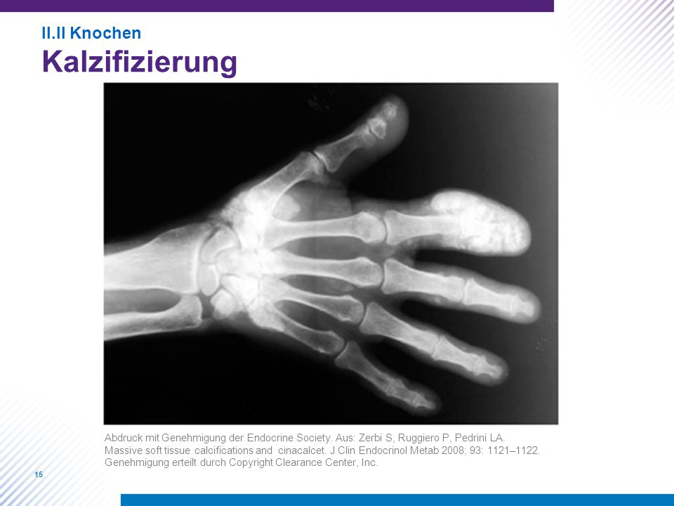 Kalzifizierung II.II Knochen