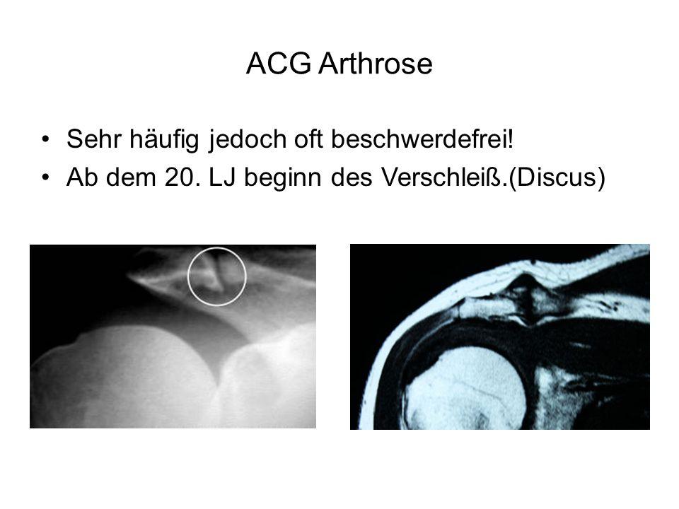 ACG Arthrose Sehr häufig jedoch oft beschwerdefrei!