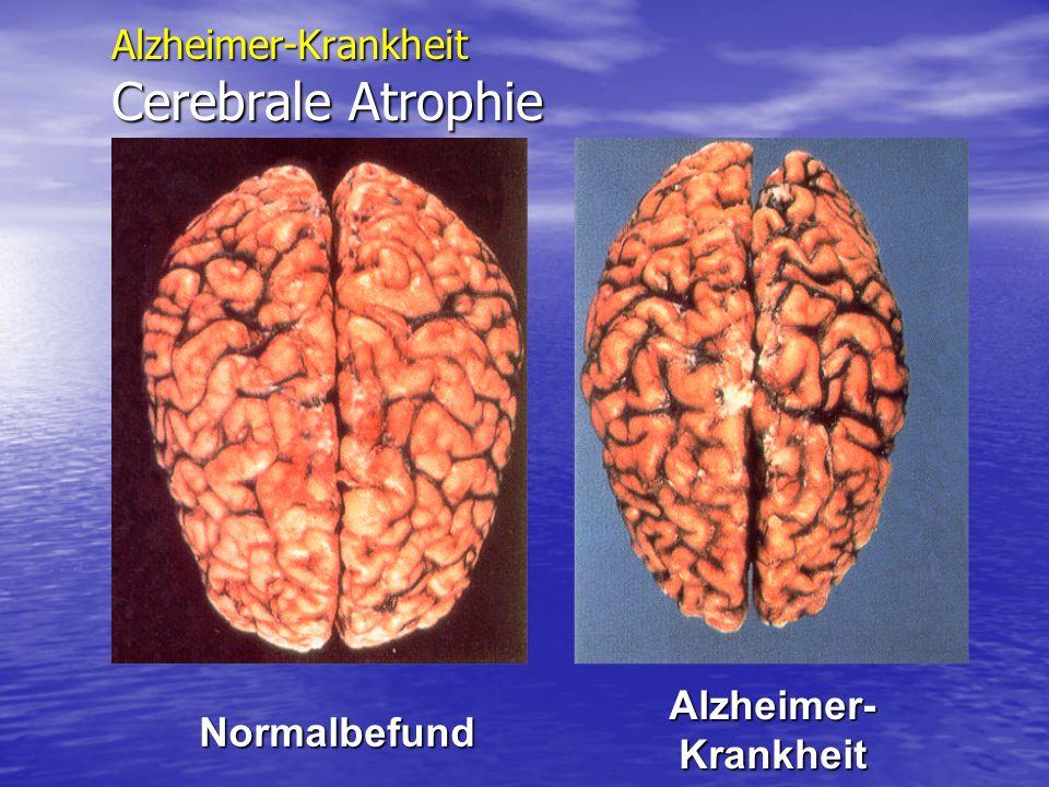 Alzheimer-Krankheit Cerebrale Atrophie