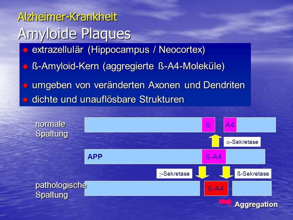 Alzheimer-Krankheit Amyloide Plaques