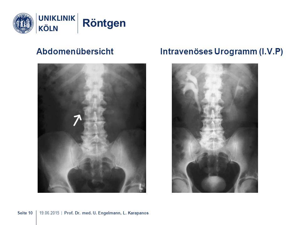 Röntgen Abdomenübersicht Intravenöses Urogramm (I.V.P) 1