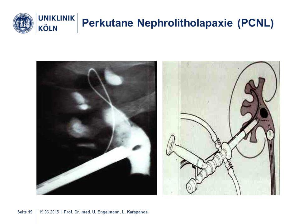 Perkutane Nephrolitholapaxie (PCNL)
