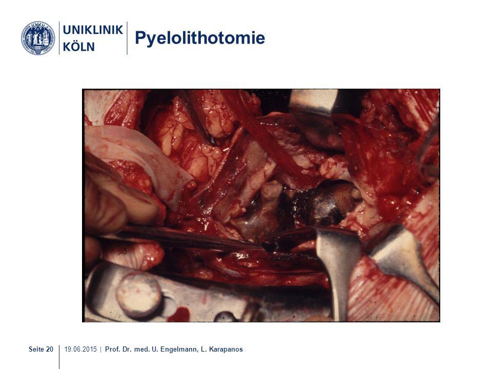 Pyelolithotomie 1