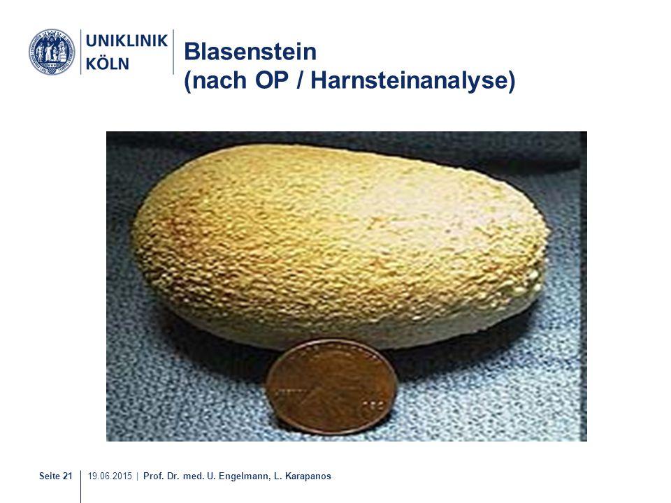 Blasenstein (nach OP / Harnsteinanalyse)