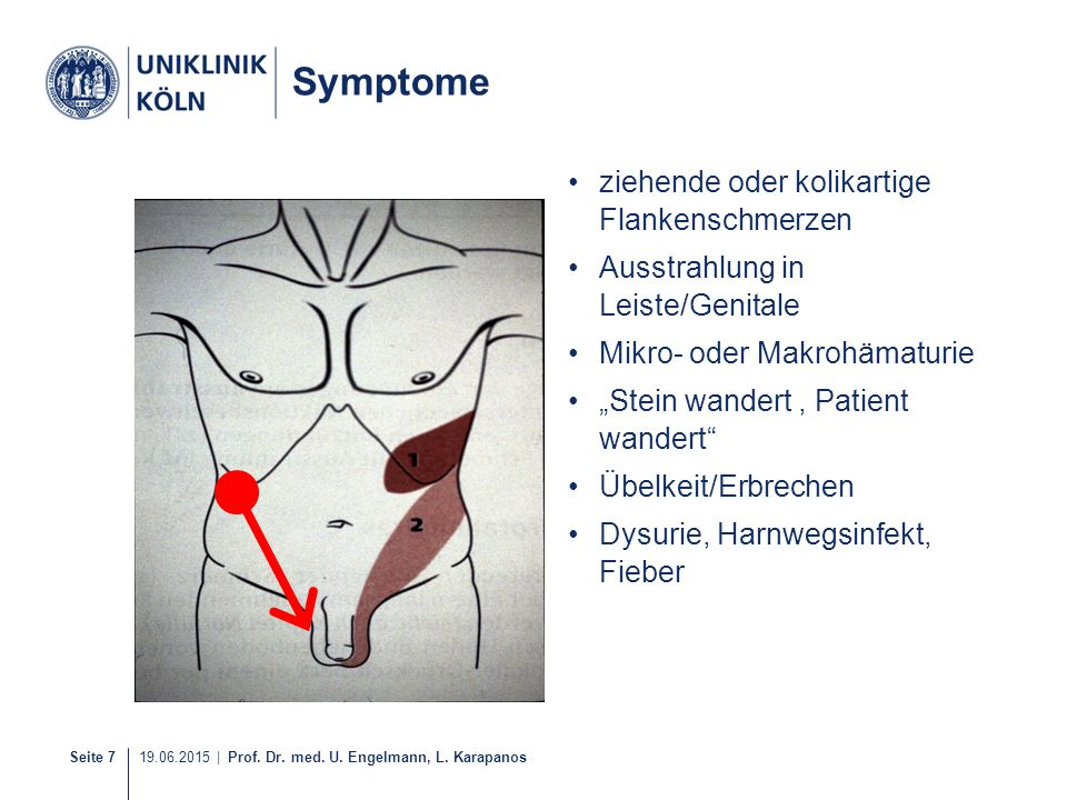 Symptome ziehende oder kolikartige Flankenschmerzen