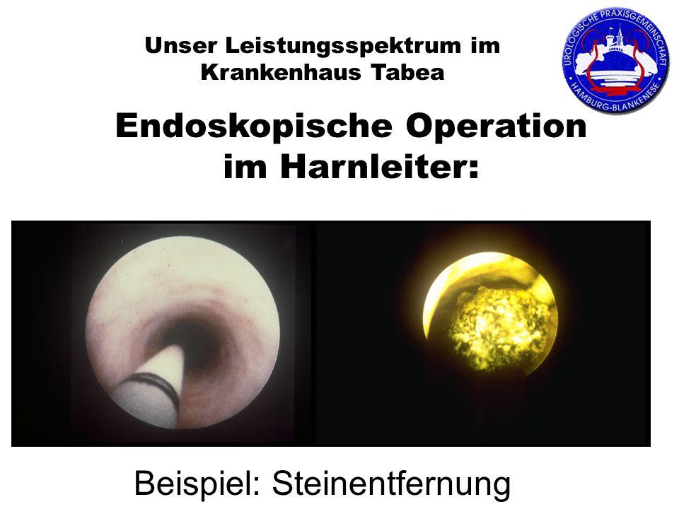 Endoskopische Operation im Harnleiter: