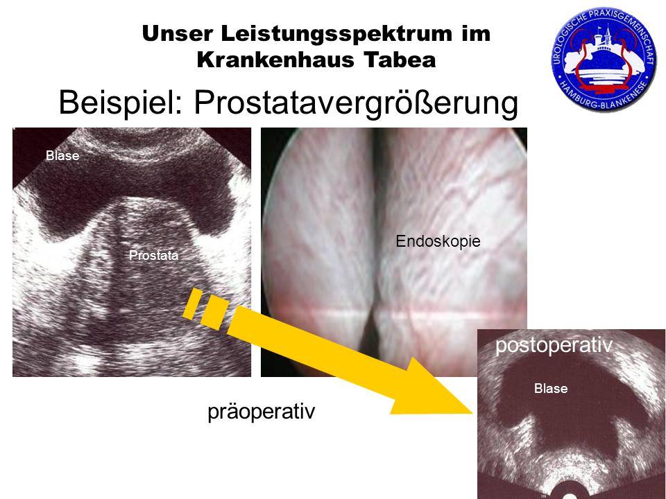 Beispiel: Prostatavergrößerung