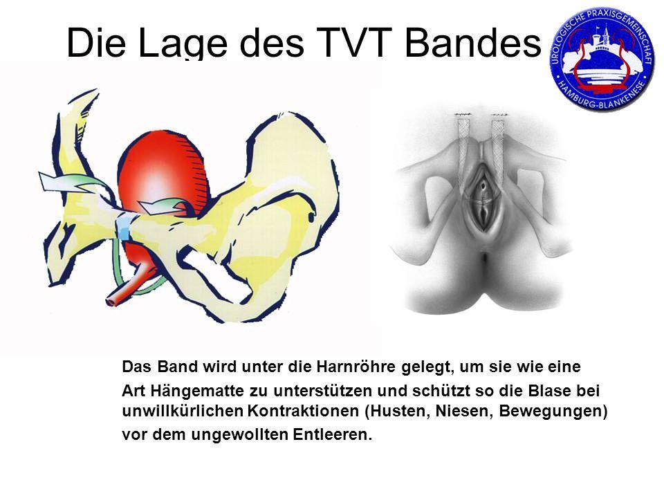 Die Lage des TVT Bandes Das Band wird unter die Harnröhre gelegt, um sie wie eine.