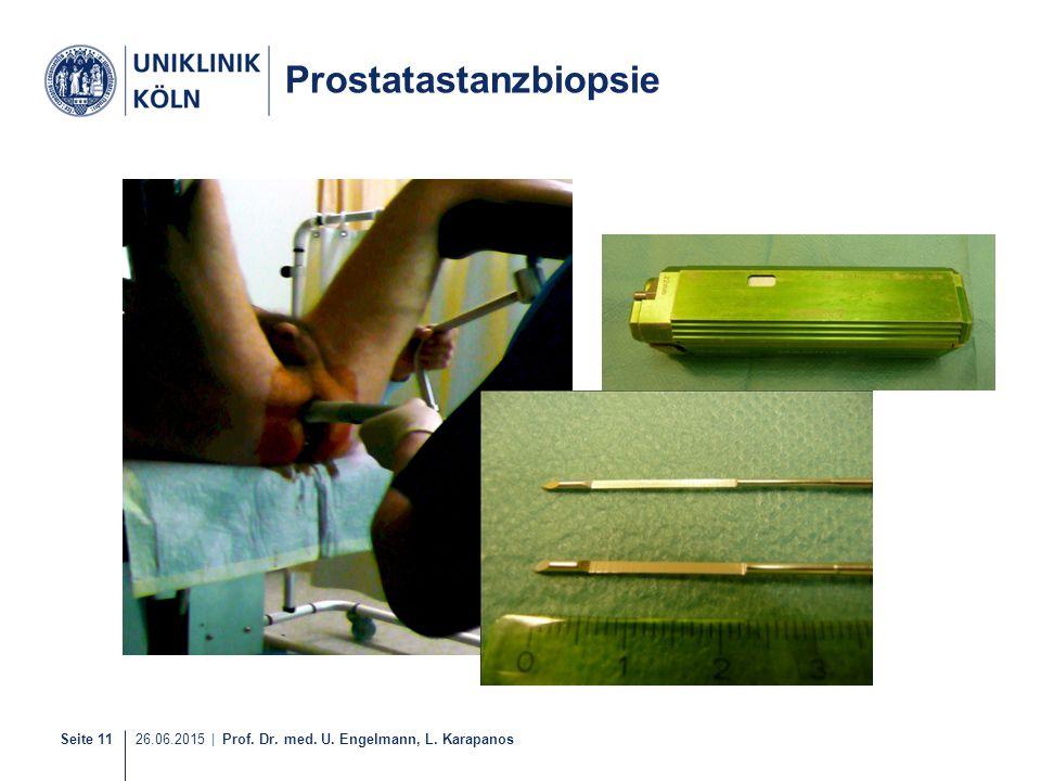 Prostatastanzbiopsie