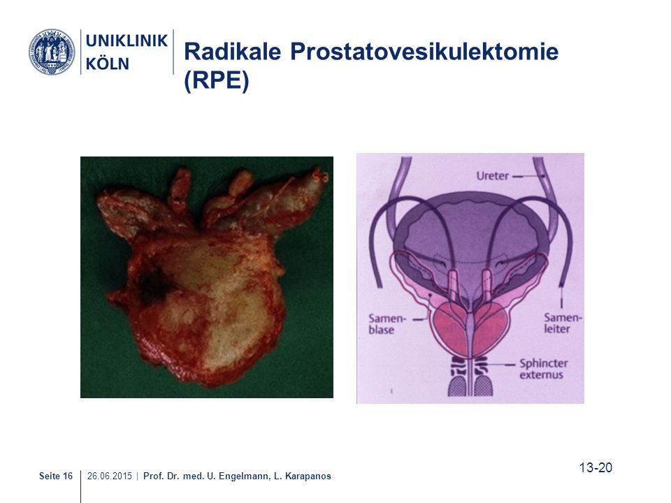 Radikale Prostatovesikulektomie (RPE)
