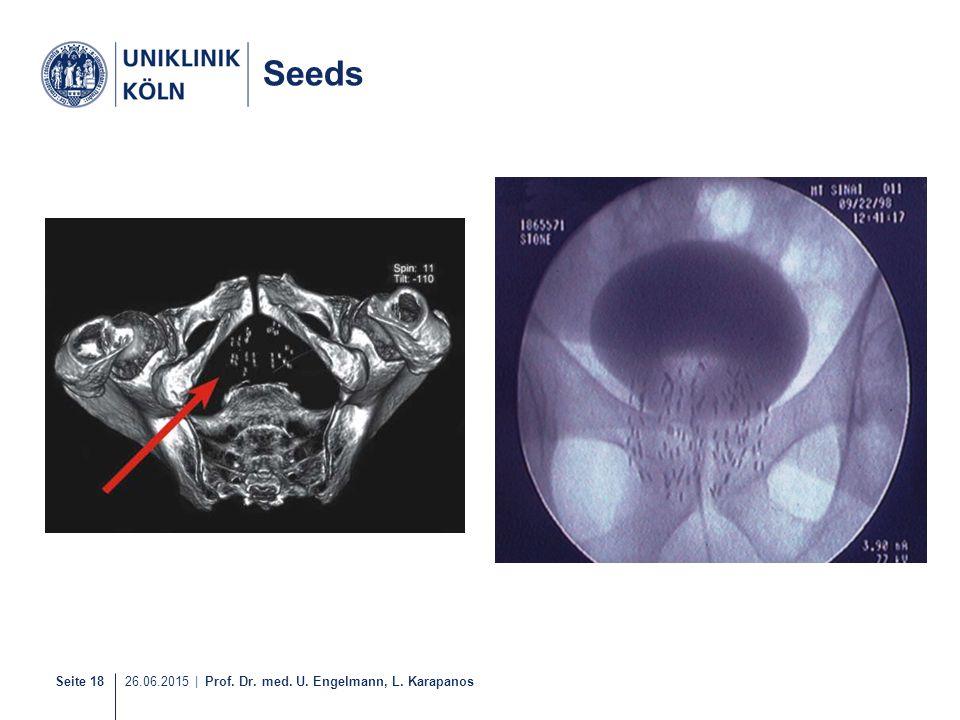 Seeds 17-21