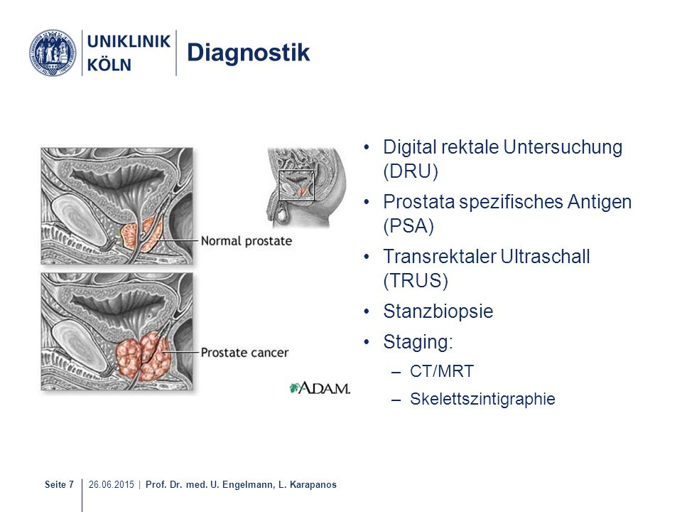 Diagnostik Digital rektale Untersuchung (DRU)