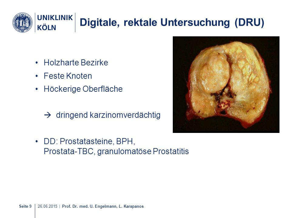 Digitale, rektale Untersuchung (DRU)