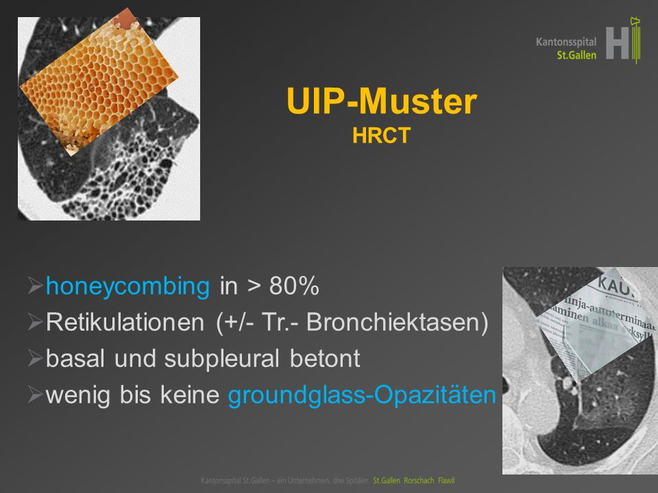 UIP-Muster HRCT honeycombing in > 80%