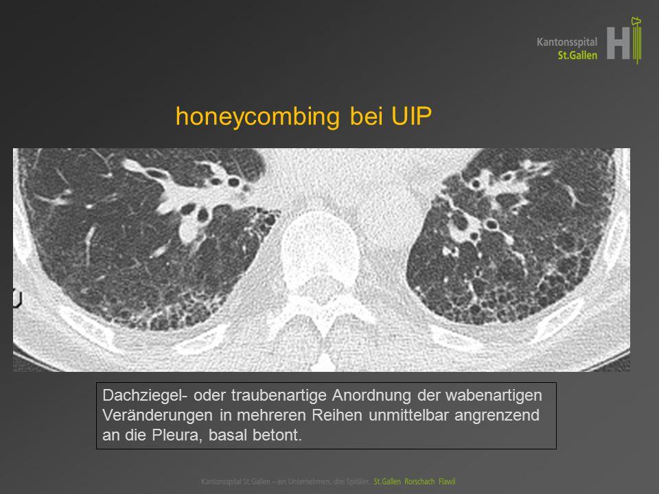 honeycombing bei UIP Dachziegel- oder traubenartige Anordnung der wabenartigen. Veränderungen in mehreren Reihen unmittelbar angrenzend.