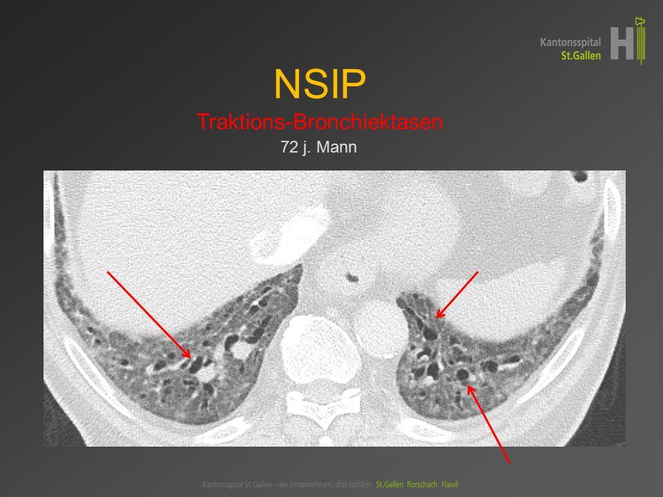 NSIP Traktions-Bronchiektasen