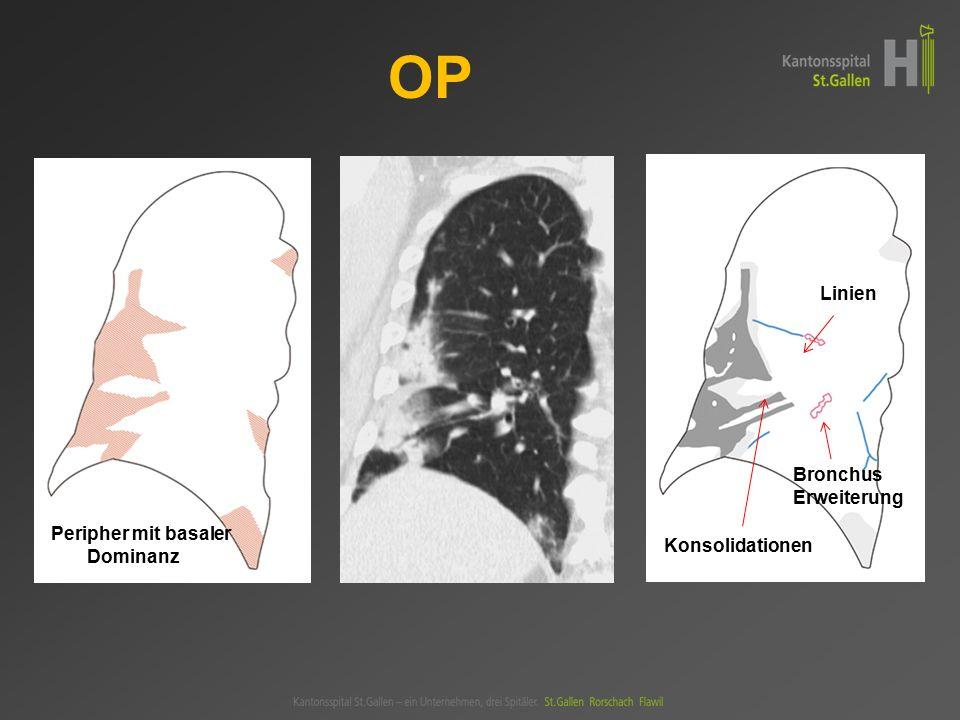 OP Linien Bronchus- Erweiterung Peripher mit basaler Dominanz
