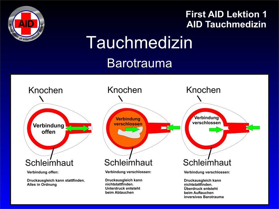 Tauchmedizin Barotrauma