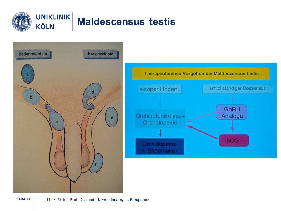 Maldescensus testis 1