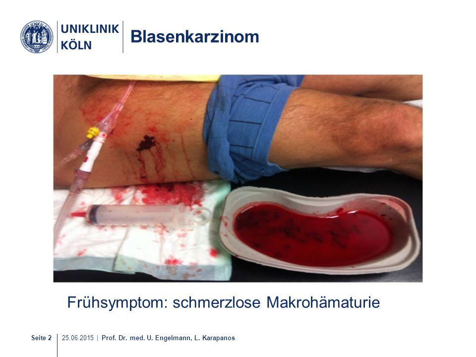 Blasenkarzinom Frühsymptom: schmerzlose Makrohämaturie