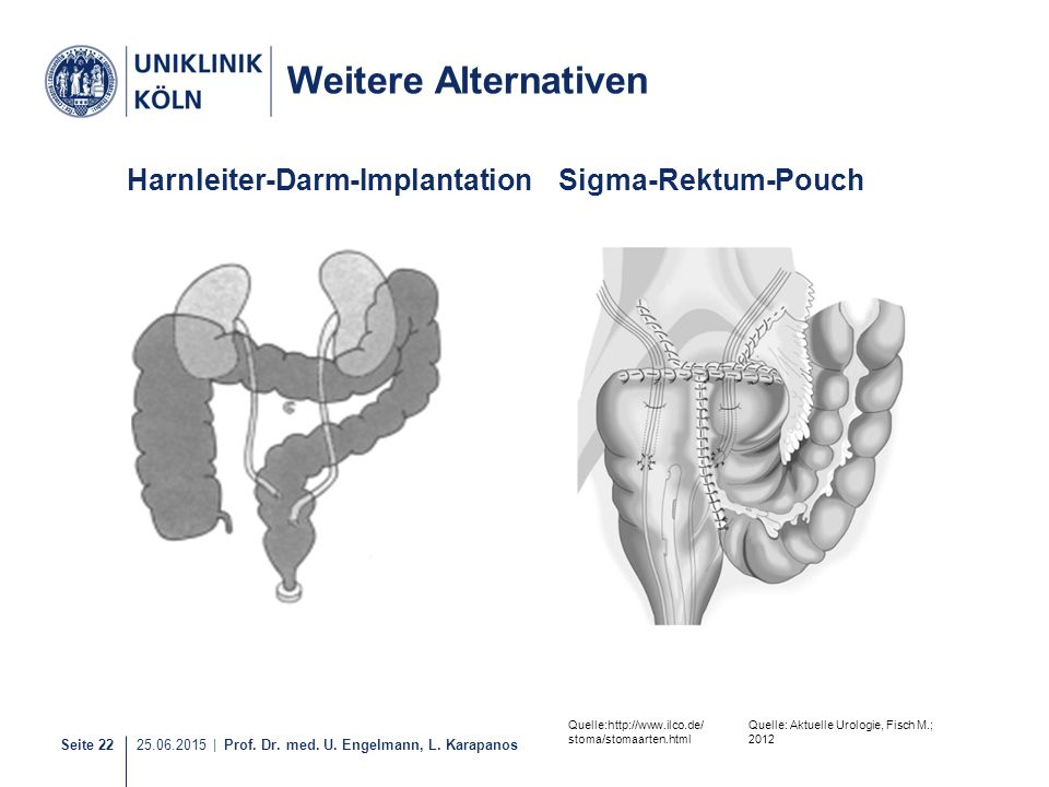 Weitere Alternativen Harnleiter-Darm-Implantation Sigma-Rektum-Pouch