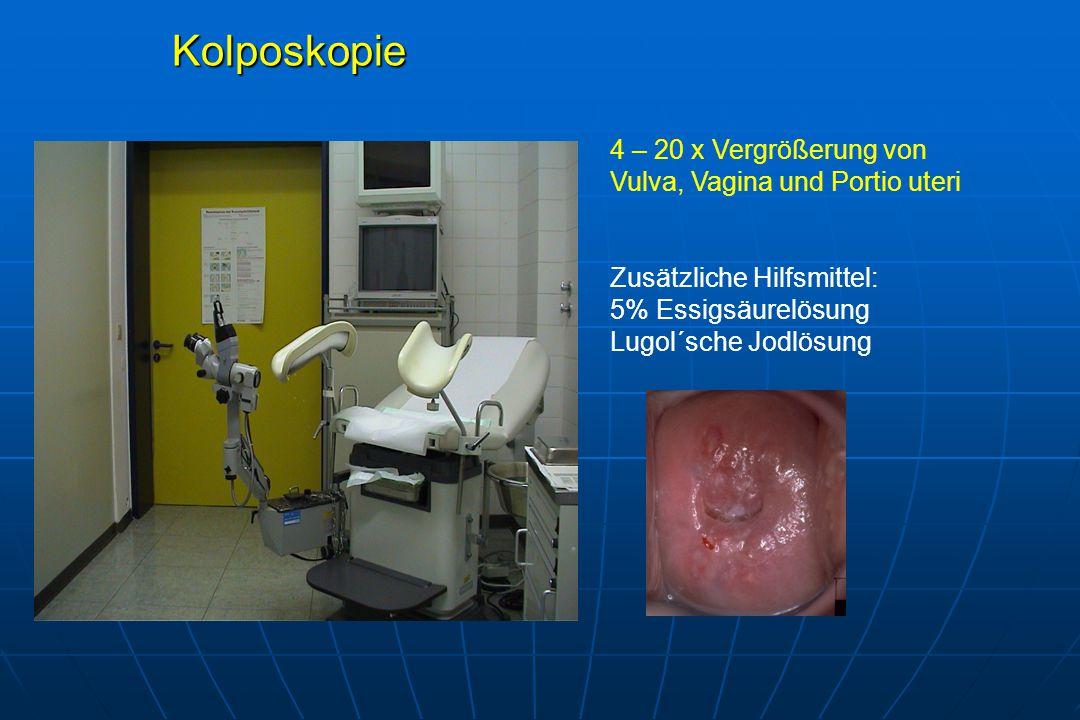Kolposkopie 4 – 20 x Vergrößerung von Vulva, Vagina und Portio uteri