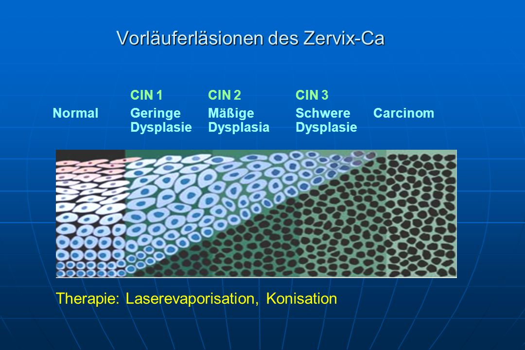 Vorläuferläsionen des Zervix-Ca