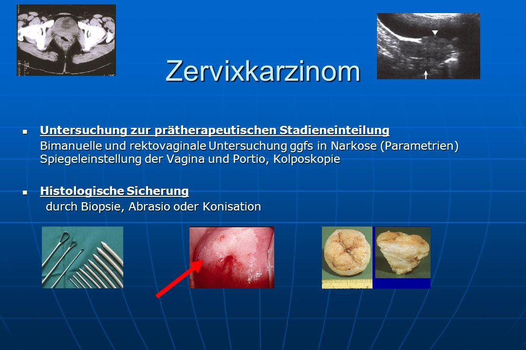Zervixkarzinom Untersuchung zur prätherapeutischen Stadieneinteilung