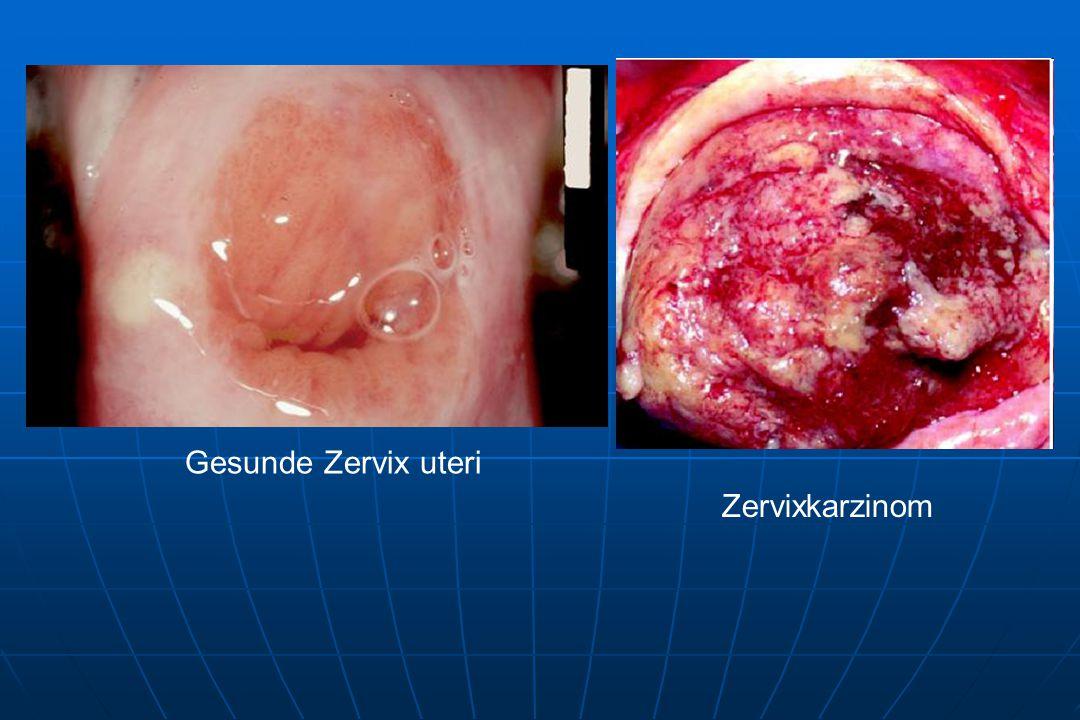 Gesunde Zervix uteri Zervixkarzinom