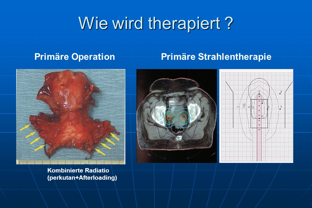 Wie wird therapiert Primäre Operation Primäre Strahlentherapie