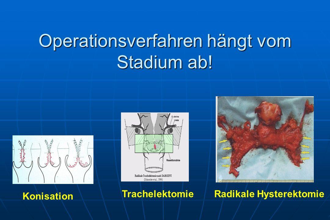 Operationsverfahren hängt vom Stadium ab!
