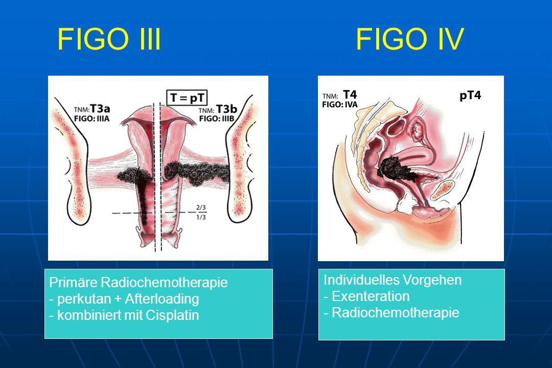 FIGO III FIGO IV Individuelles Vorgehen Primäre Radiochemotherapie