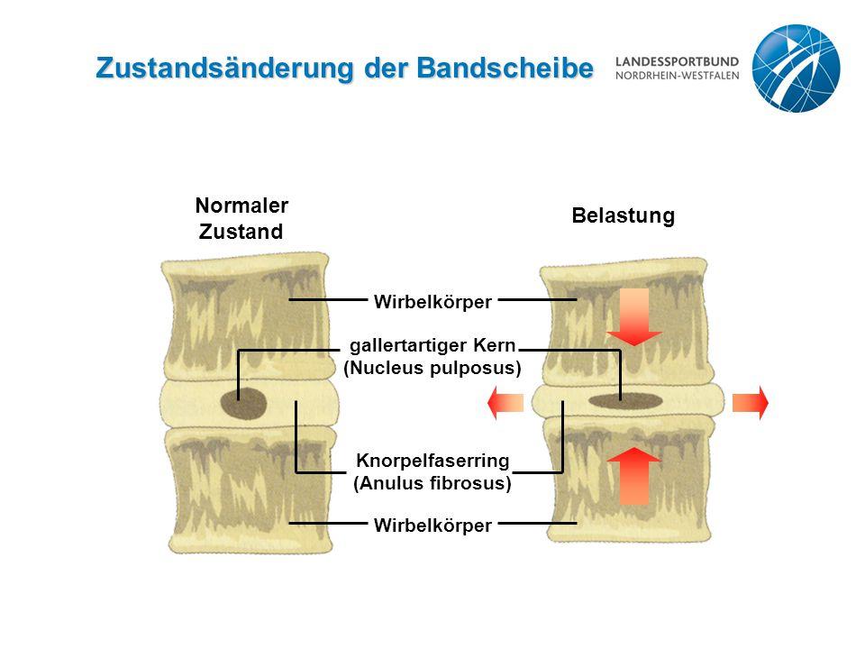 Zustandsänderung der Bandscheibe