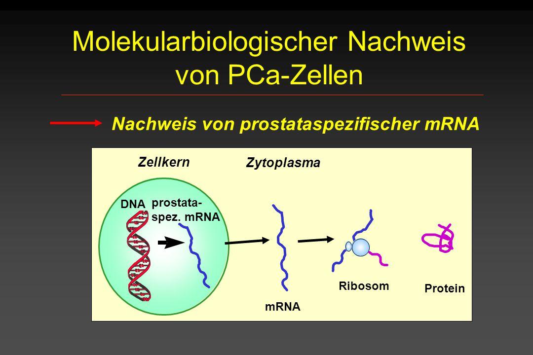 Molekularbiologischer Nachweis von PCa-Zellen
