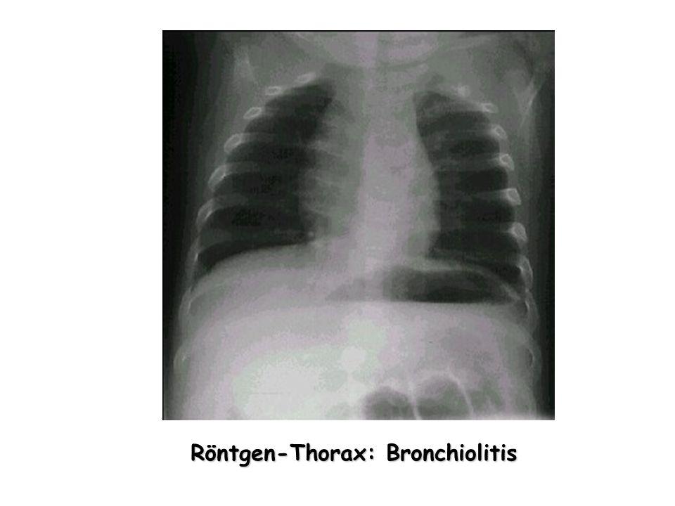 Röntgen-Thorax: Bronchiolitis