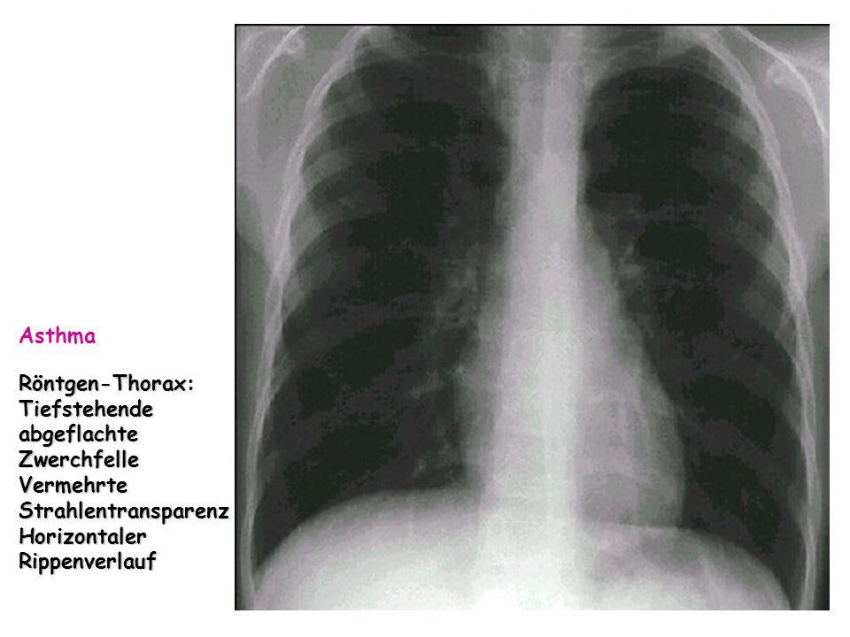 Asthma Röntgen-Thorax: Tiefstehende abgeflachte Zwerchfelle.