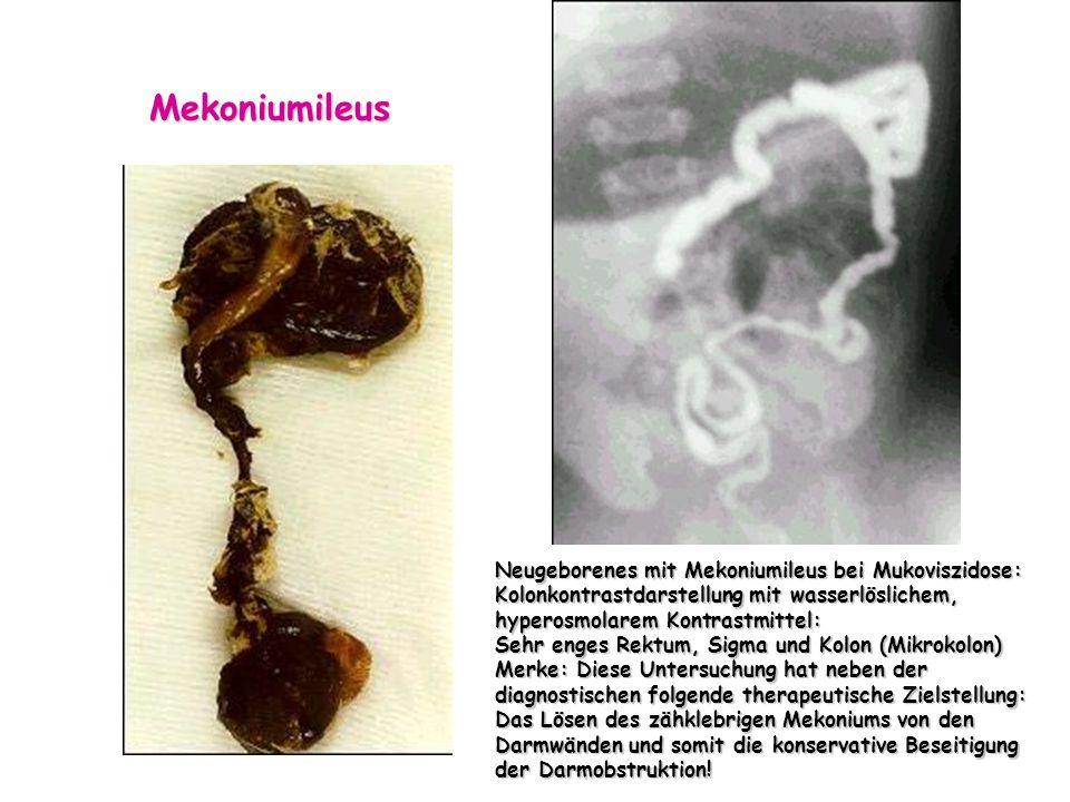 Mekoniumileus