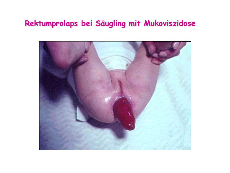 Rektumprolaps bei Säugling mit Mukoviszidose
