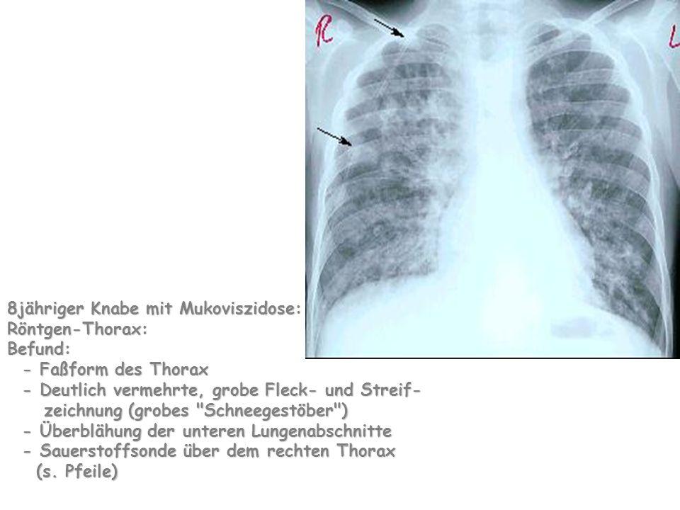 8jähriger Knabe mit Mukoviszidose: Röntgen-Thorax: Befund: - Faßform des Thorax - Deutlich vermehrte, grobe Fleck- und Streif- zeichnung (grobes Schneegestöber ) - Überblähung der unteren Lungenabschnitte - Sauerstoffsonde über dem rechten Thorax (s.