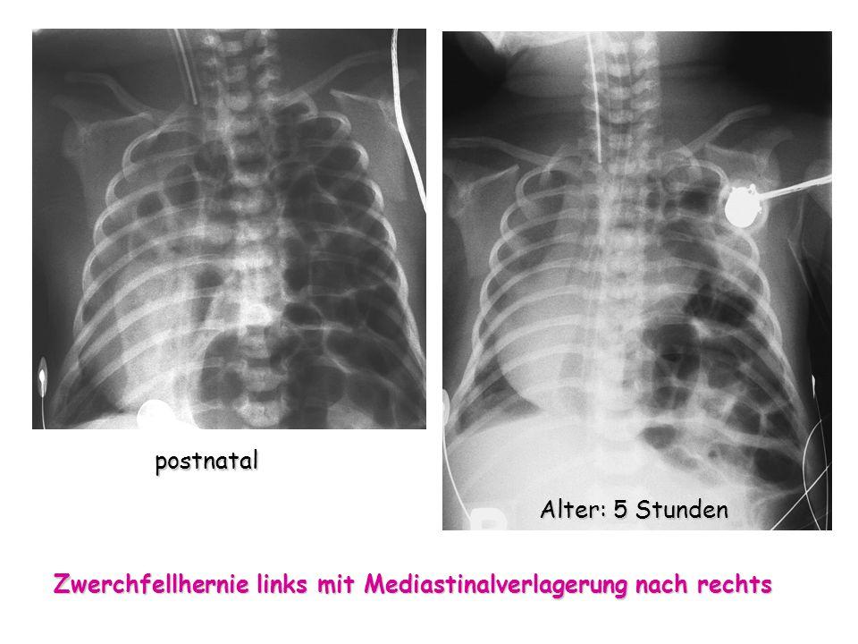 postnatal Alter: 5 Stunden Zwerchfellhernie links mit Mediastinalverlagerung nach rechts