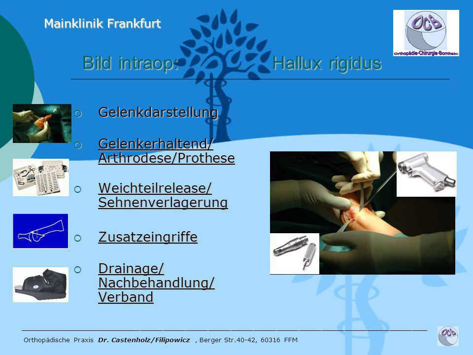 Bild intraop: Hallux rigidus