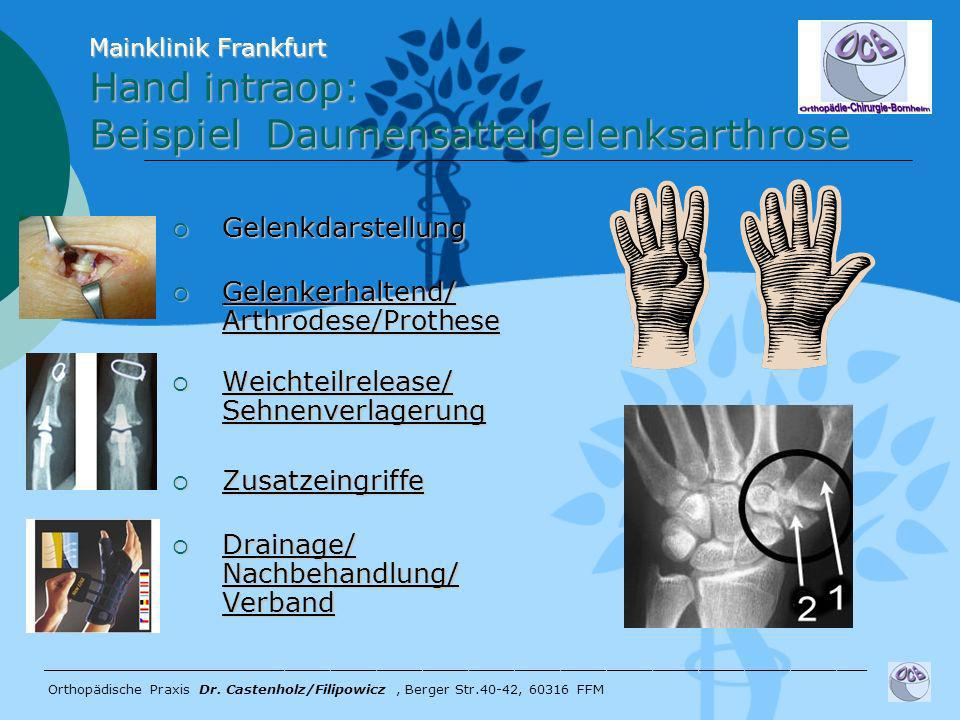 Hand intraop: Beispiel Daumensattelgelenksarthrose