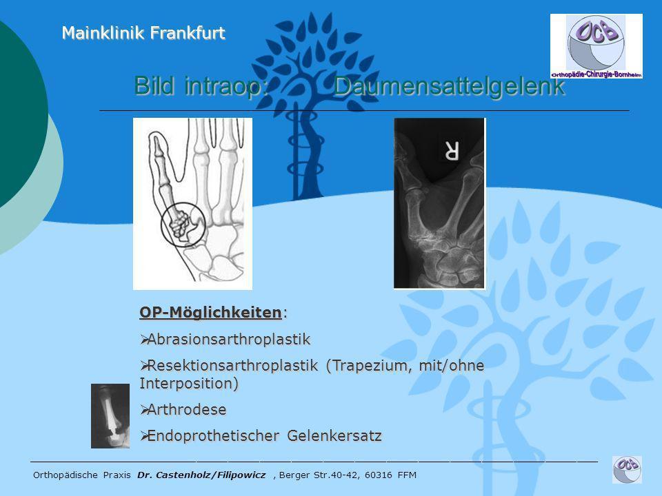Bild intraop: Daumensattelgelenk