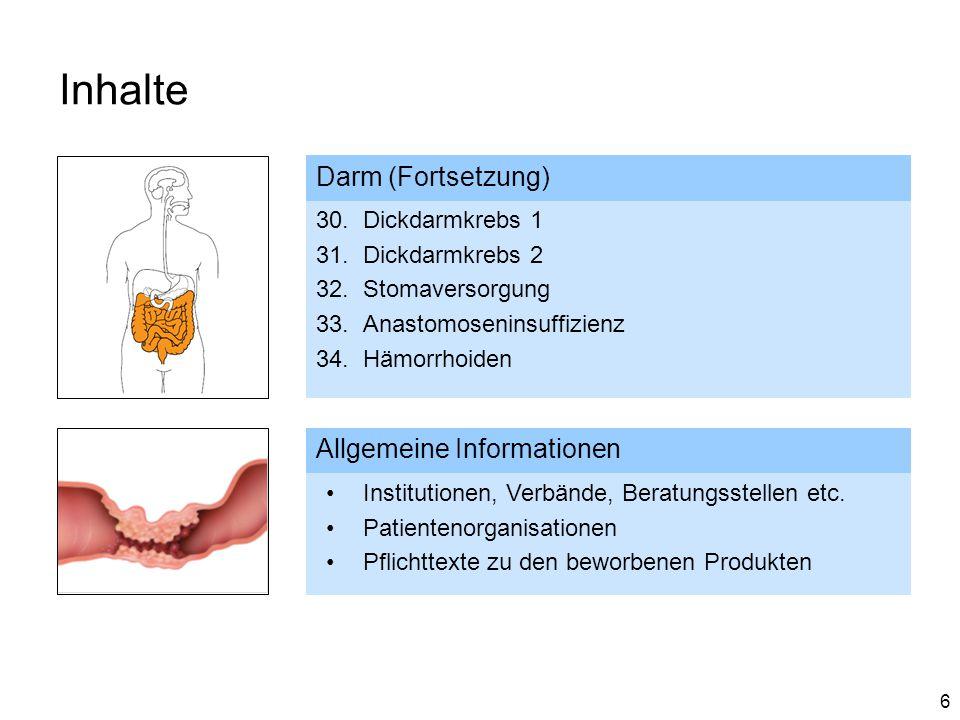 Inhalte Darm (Fortsetzung) Allgemeine Informationen Dickdarmkrebs 1